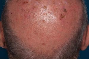 Wenn heller Hautkrebs als Frühform (aktinische Keratose) erkannt wird, ist eine Behandlung möglich <br />
