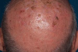 Ein Patient mit mehreren aktinischen Keratosen, einer Frühform des hellen Hautkrebs<br />